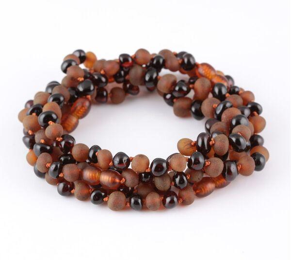 Baltic Amber Anklet Bracelet for Adults