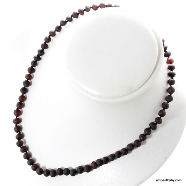 Cherry Baroque Baltic Amber Necklace for Adults